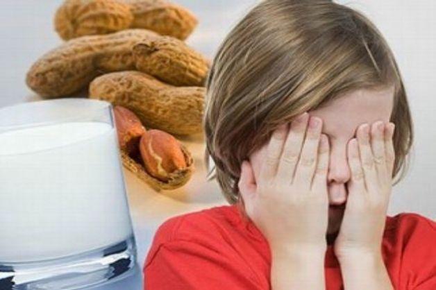 Le allergie alimentari dei bambini